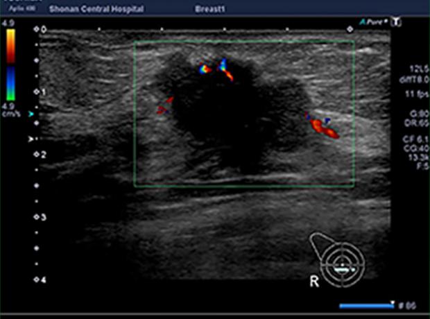 乳房超音波検査1