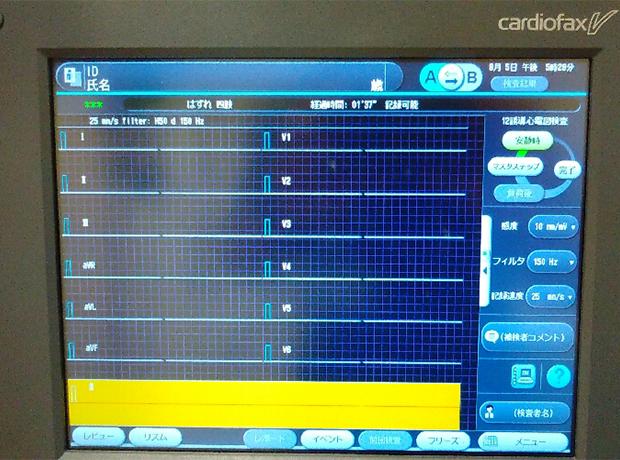 心電図検査2