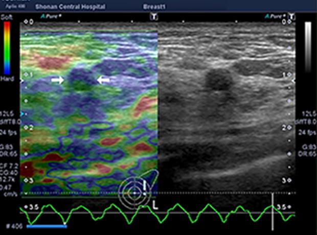 乳房超音波検査2