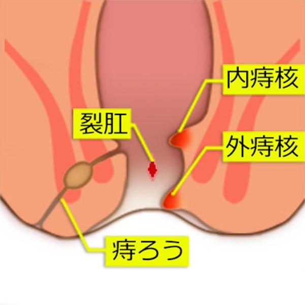 痔の種類説明図